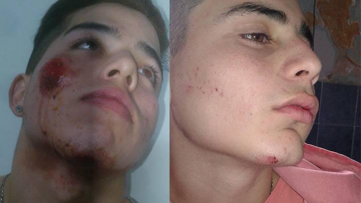 Santiago y Franco fueron golpeados por la Policía hace menos de dos años.