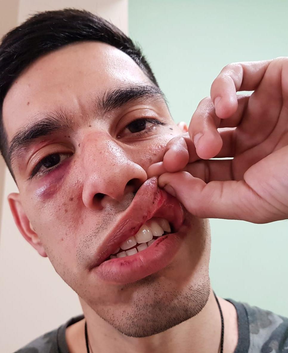 Esteban muestra las consecuencias del ataque callejero que sufrió amanos de un supuesto gendarme.