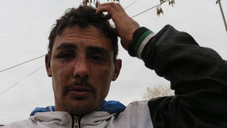 Sebastián, hace dos años, después de haber sido brutalmente golpeado.