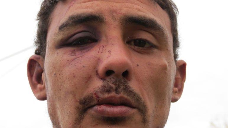 Las imágenes del joven que dijo haber sido brutalmente golpeado por policías.
