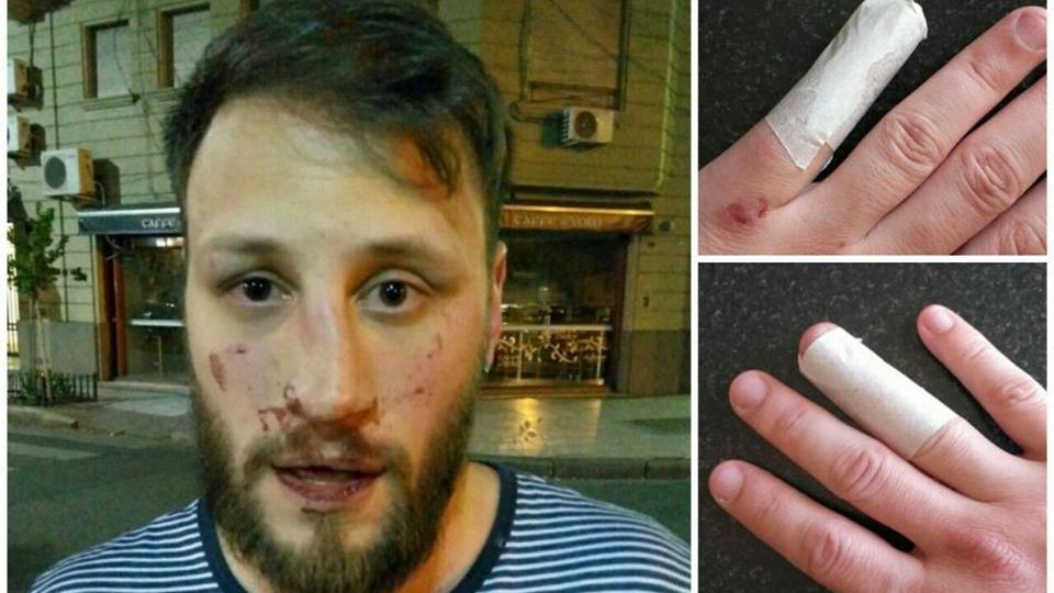 Con dos dedos entablillados y lesiones el rostro terminó Ángel Leonardi.