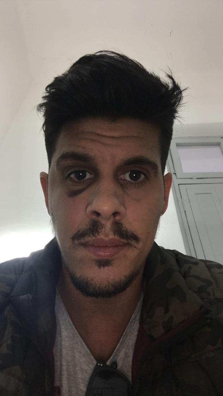 La agresión le causó tres fracturasfaciales a José Carranza.